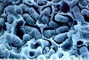 Rhodococcus rhodochrous