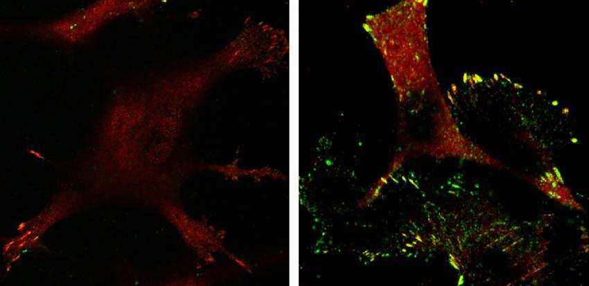 Sel tumor mengekspresikan p53