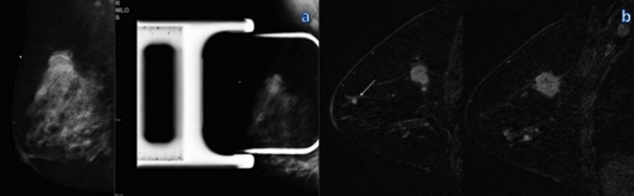 mamografi, MRI, payudara