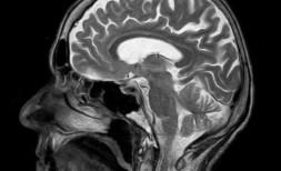 MRI, otak