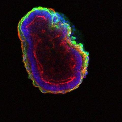 stem cell, sel punca, bola berongga